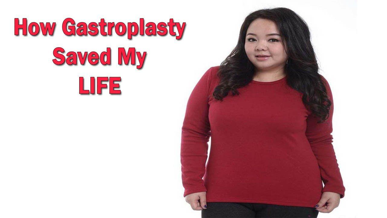 Understanding Gastroplasty Vertical Stomach Stapling Weight Loss