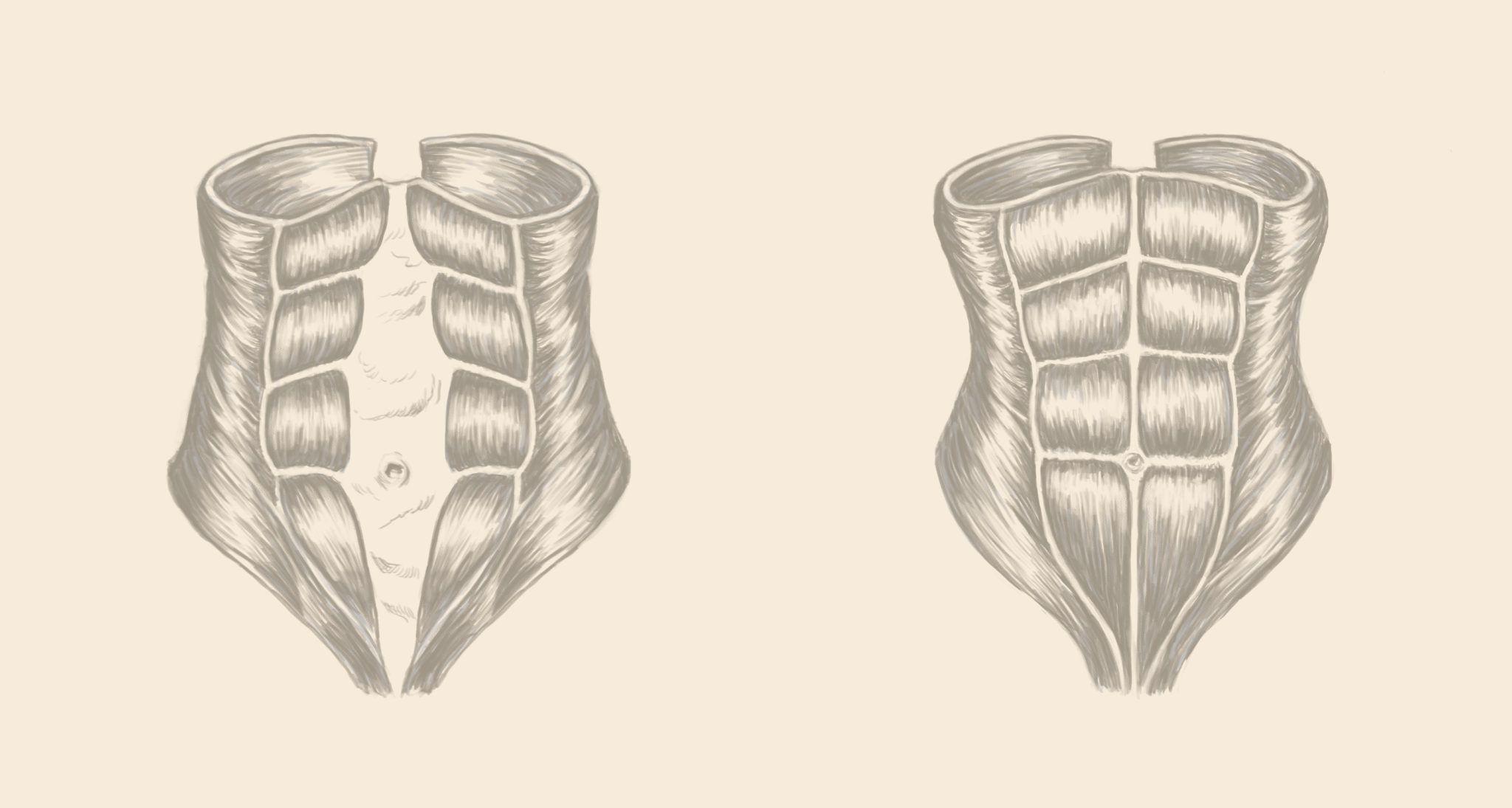 how to fix diastasis recti 3 years later