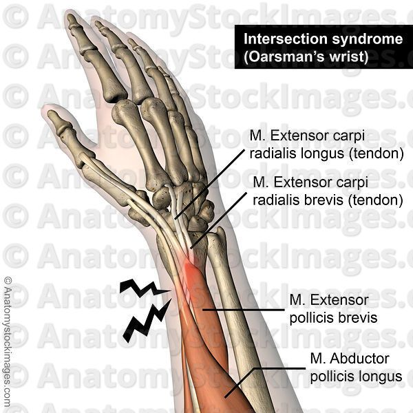 Forearm Intersection Syndrome Oarsmans Wrist Musculus Extensor Carpi