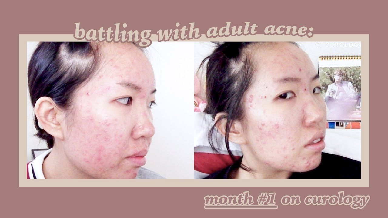 BATTLING ADULT ACNE Month  on Curology  Routine  Skin Care