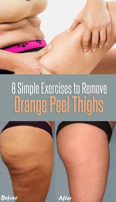 How to lose thigh fat pinterest