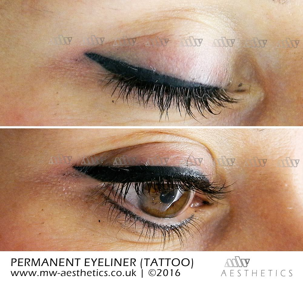 Permanent Eyeliner Tattoo Picture Taken Straight After The