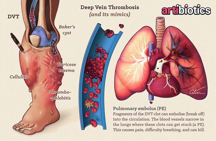 sângele varicos este gros)