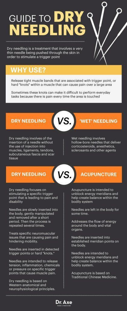 Guide to Dry Needling