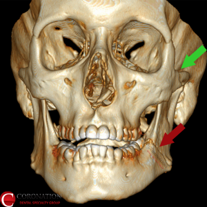 Left mandible fracture (broken jaw) and zygomatic arch