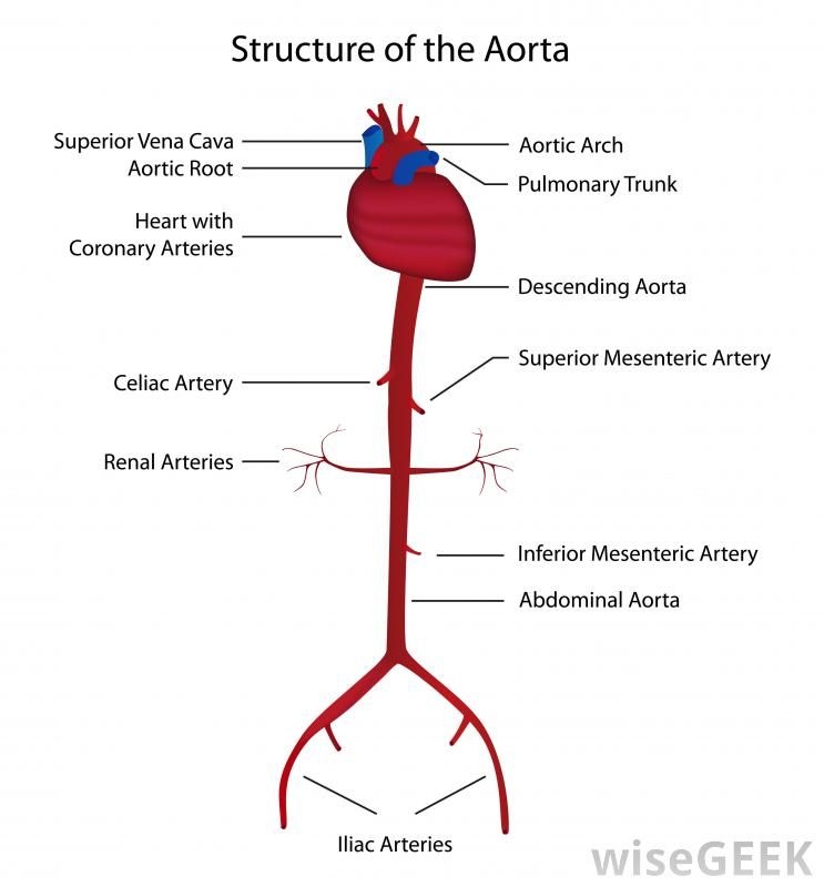 ascending aortic aneurysm | diagram of the aorta the largest artery ...