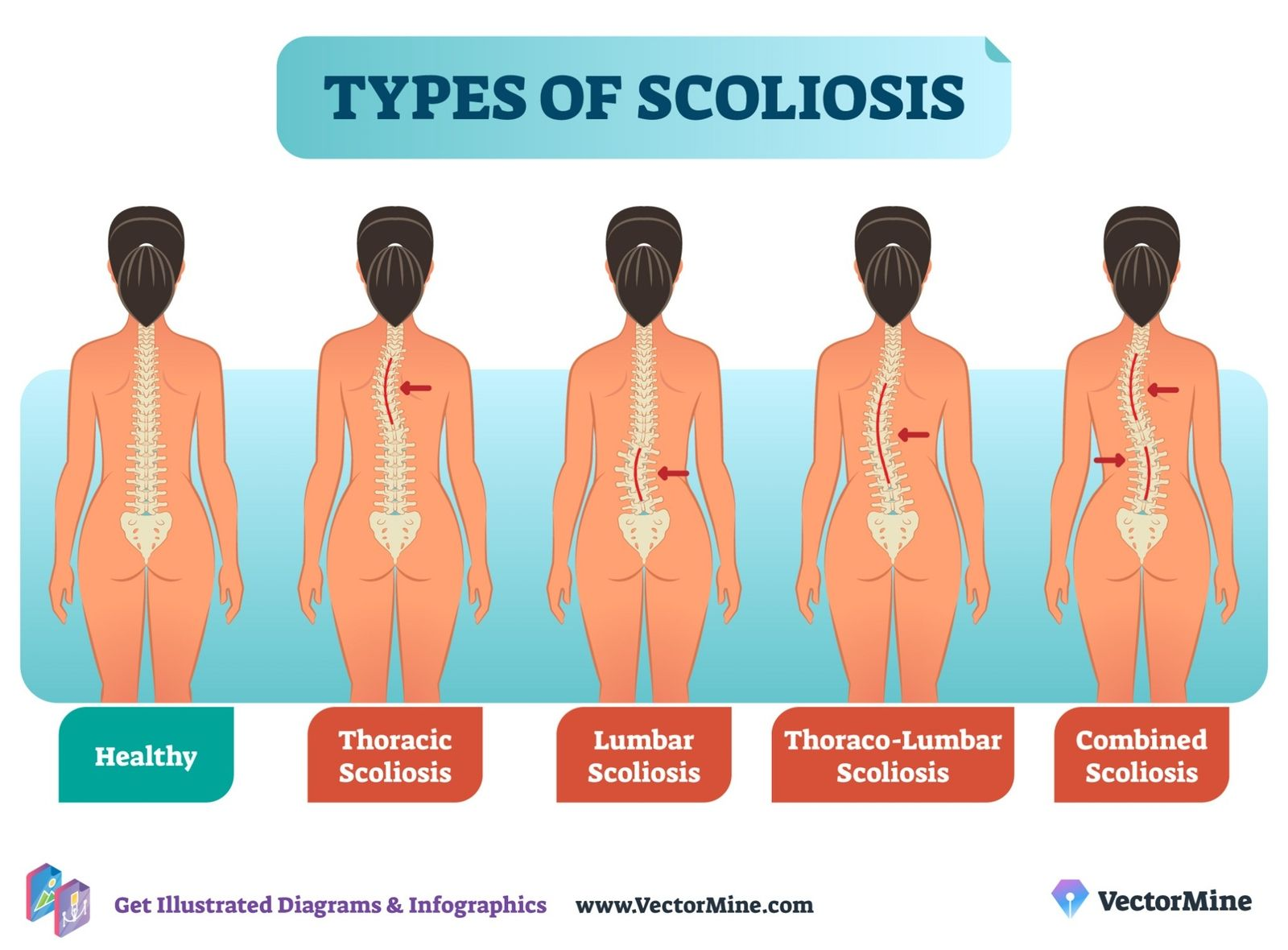 Pin On Scoliosis