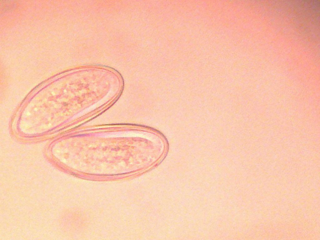 enterobius vermicularis rectal prolapse viermisori la bebelusi de 6 luni