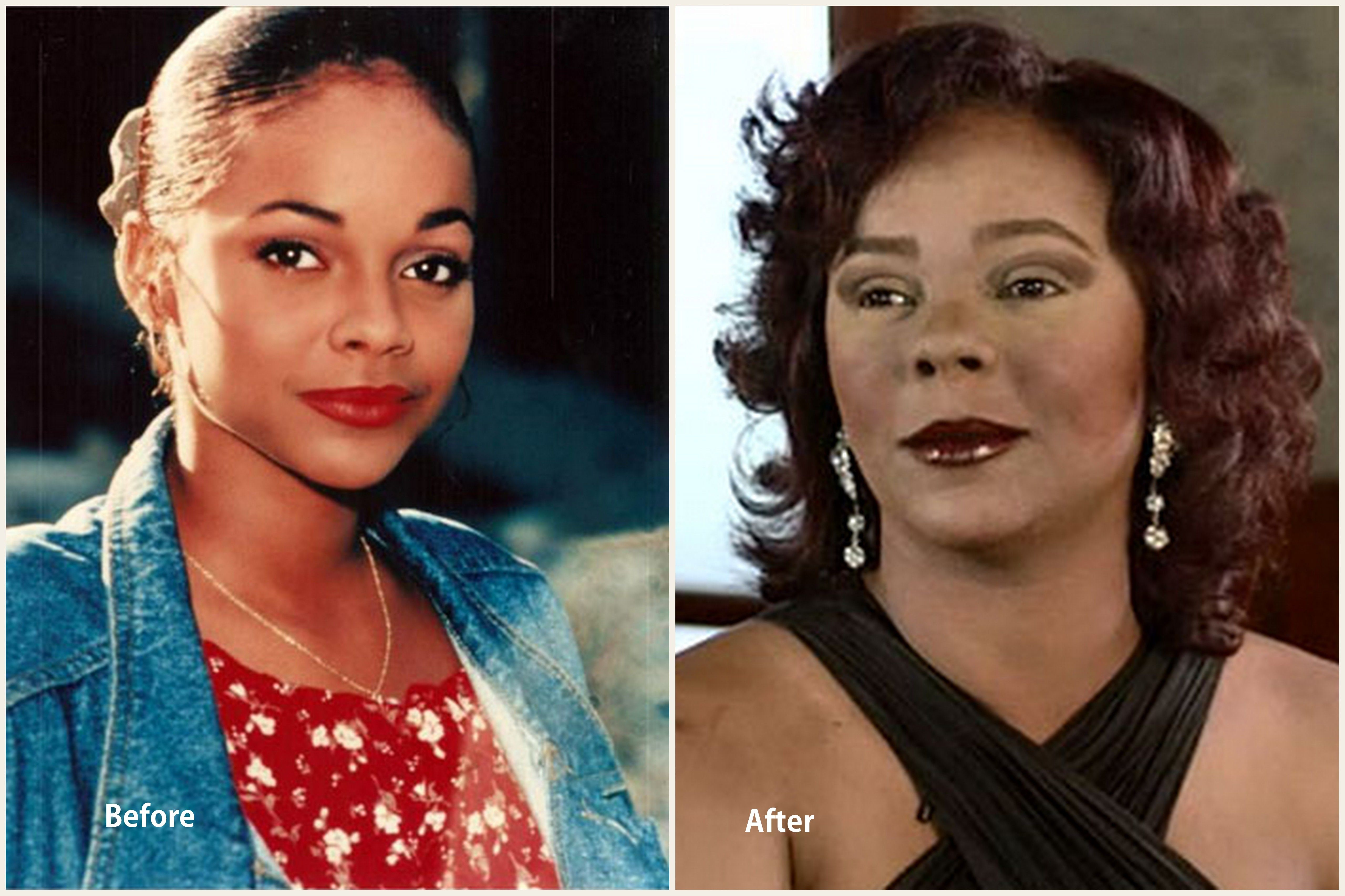 top 10 worst celebrity plastic surgery disasters from hollywood