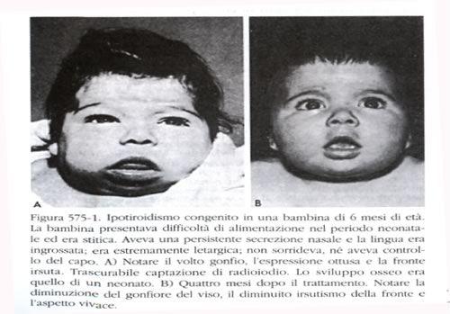Medicine di emorroidi esterne quando allattamento al seno