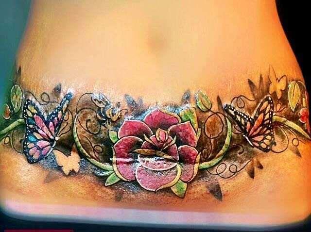Tummy tuck tattoos 12 un tatuaje pinterest d tummy for Scar tattoo ideas