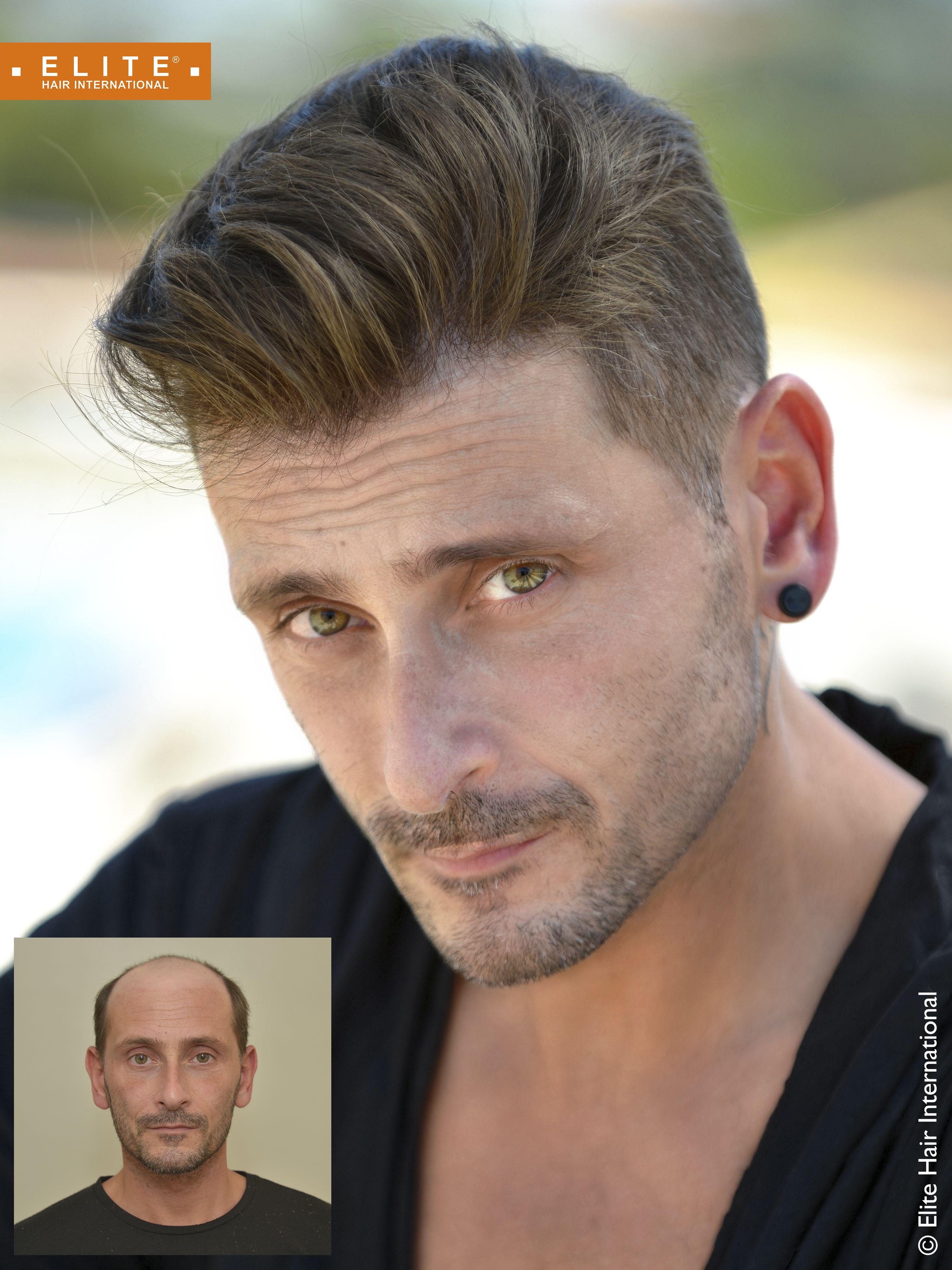 perte de cheveux homme   Complément capillaire
