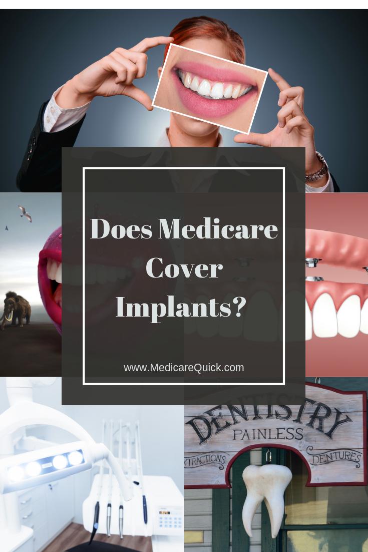 Does Medicare Cover Dental Implants Dental Insurance Dental
