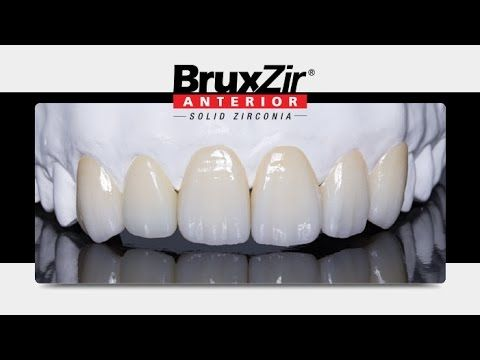replacement of anterior pfm crowns with bruxzir anterior solid zirconia crowns youtube