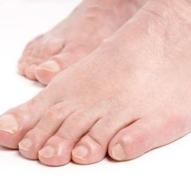 How to Get Rid of Calluses with Aspirin   Pinterest   Remedies, Cure ...