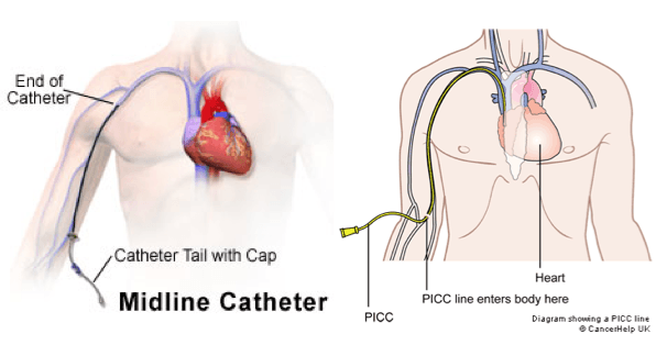 Picc Line Vs Midline Iv Therapy Interventional Radiology Nclex