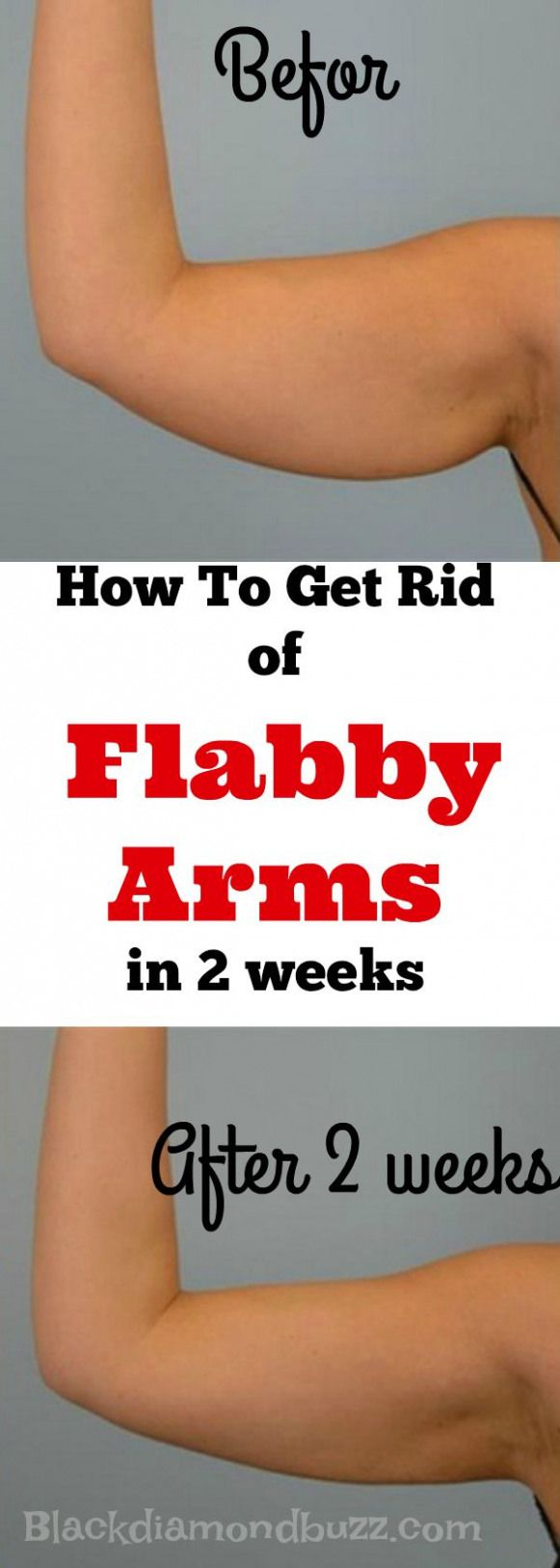 How To Get Rid Of Flabby Upper Arms Fast