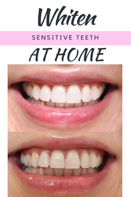 How I Whiten My Sensitive Teeth At Home Birthday Month Giveaway