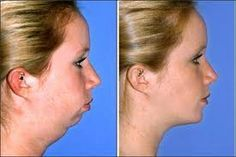 young girl, jaw implant, liposuction neck - Google Search | chin ...