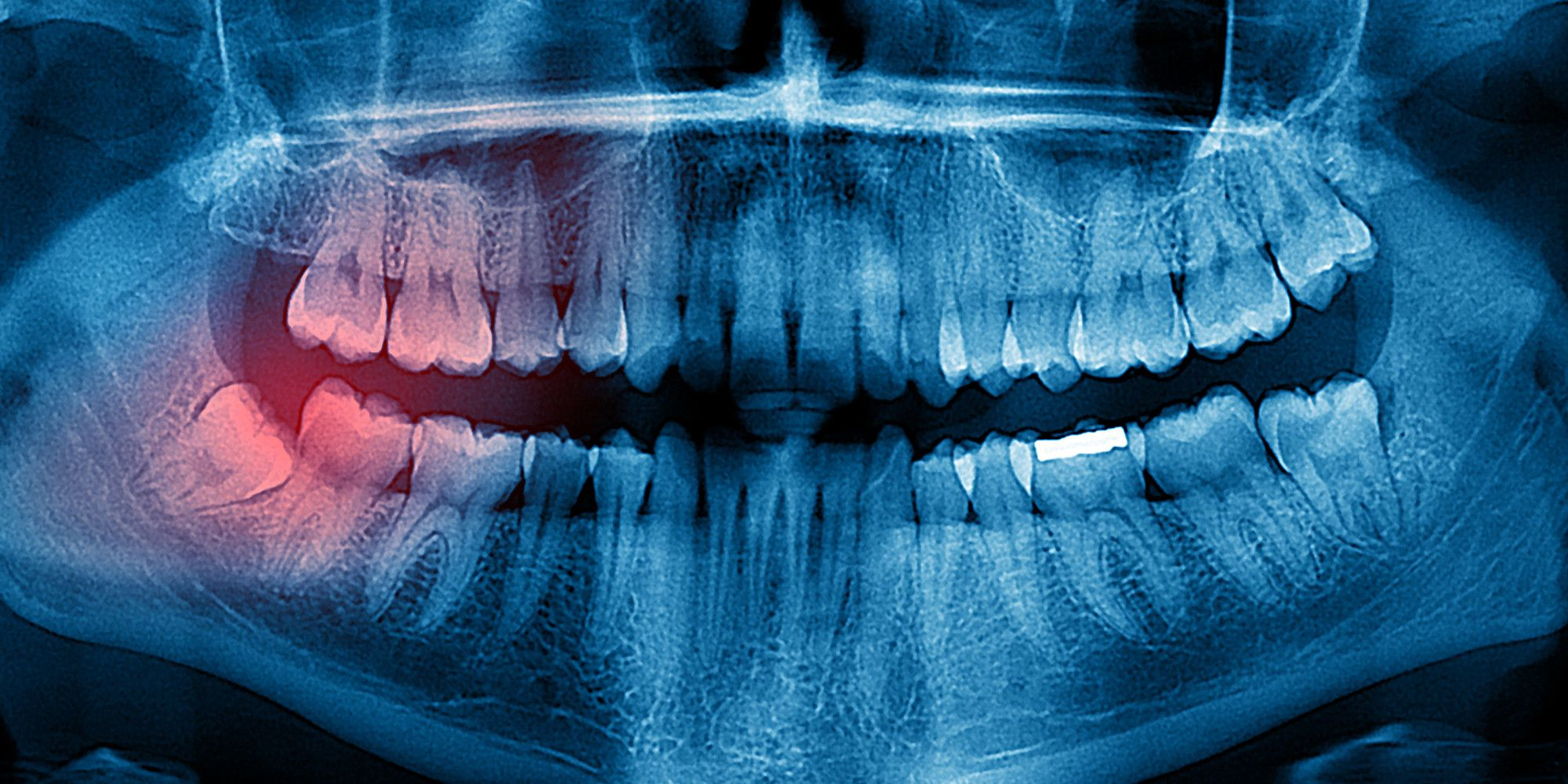 Park Art My WordPress Blog_How To Prepare For Impacted Wisdom Teeth Removal