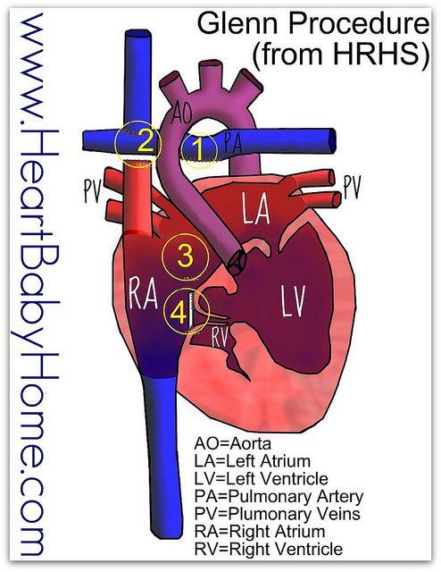 Glenn Procedure From Hrhs Congenital Heart Defect Cardiac Sonography Congenital Heart
