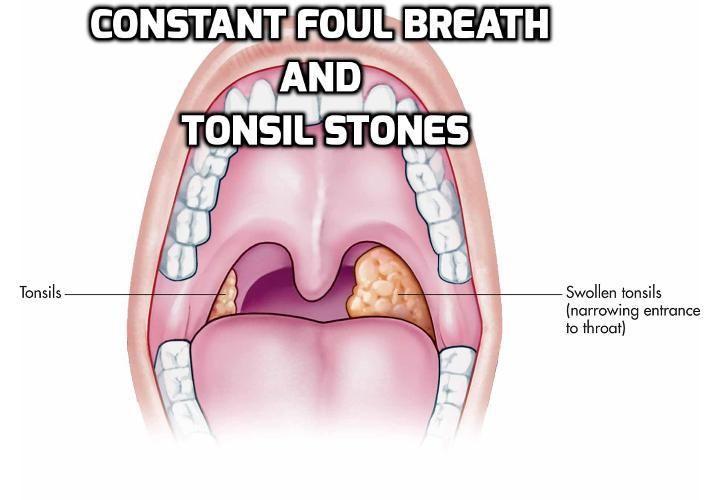 At leve med konstant åndedræt vejrtrækning og Tonsilsten - Mest-5889