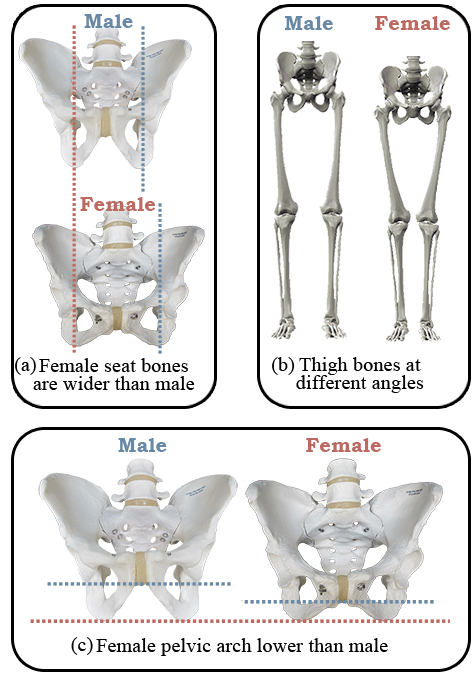 Male with female hips
