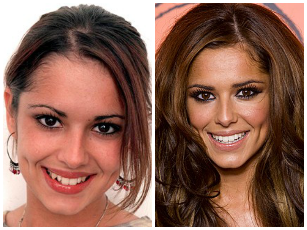 55 shocking images of celebrities before and after photoshop lady - Celebrities With Veneers