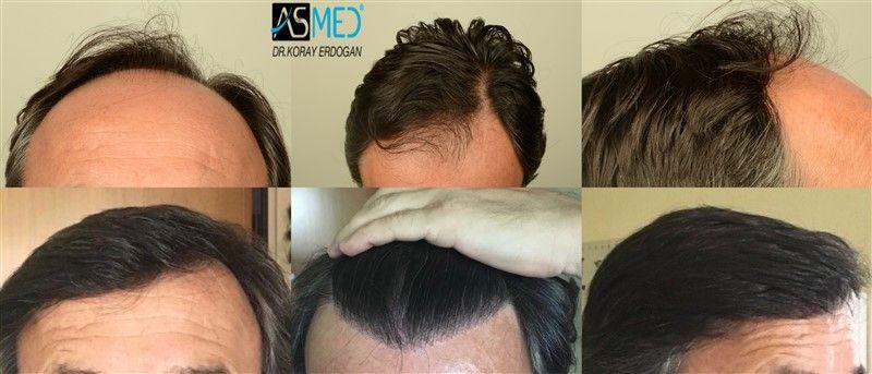Asmed Koray Erdogan 3012 Graft Hairtransplant