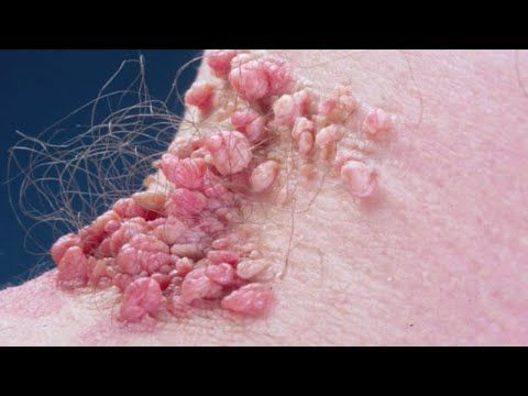 how to stop skin tags