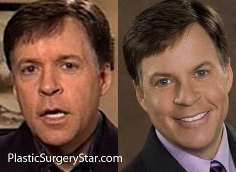 Bob Costas Plastic Surgery Celebrity Face Lift Before And After