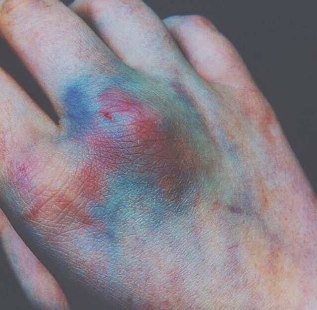 Bruises like spiders, making webs on your skin....
