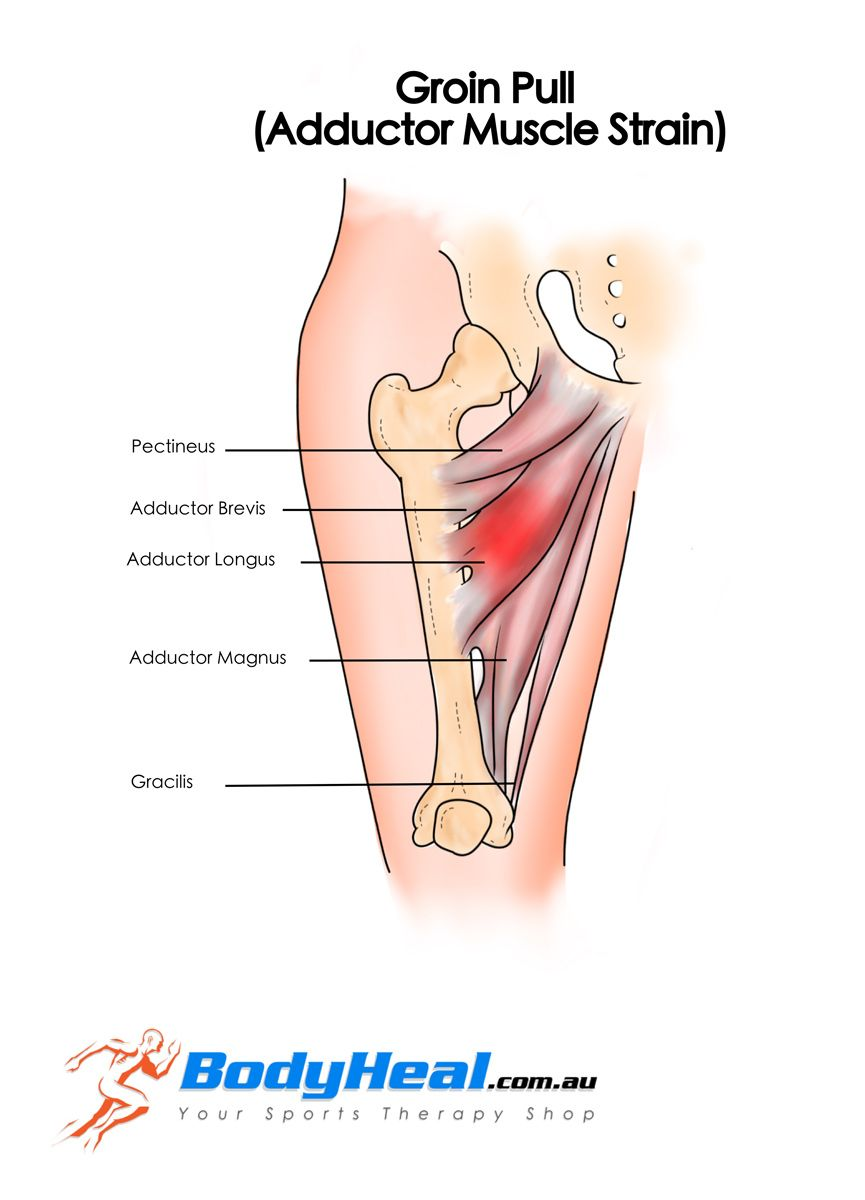 Medical groin problem