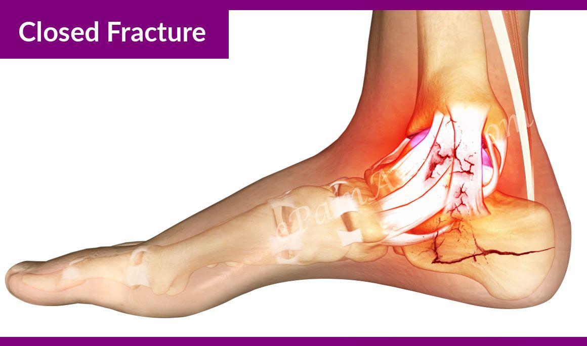 Calcaneus fracture, Treatment recovery