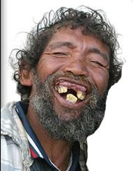 Man With No Teeth Smiling Pictures Plenty Woman With No Teeth