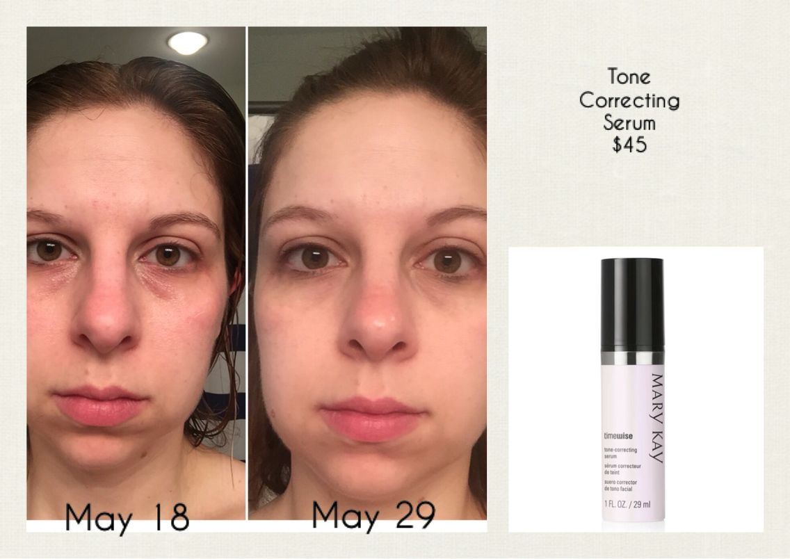 Tone Correcting Serum Mary Kay Find It At Www Marykay Com K S Mary Kay Facial Mary Kay Skin Care Mary Kay Consultant