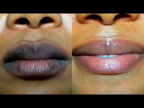 How To Lighten Dark Lips Naturally Fast Result Get Pink Lips In