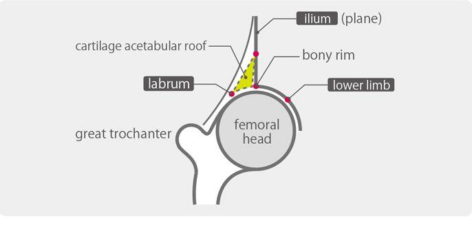 hip ultrasound anatomy ile ilgili görsel sonucu   Musculoskeletal ...