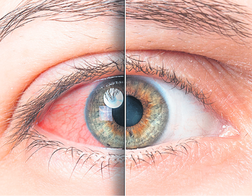 A hypothyreosis és az otthoni kezelés tünetei - Gabonafélék