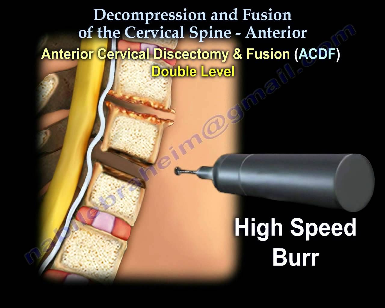 Orange county ca s premier non surgical spinal decompression clinic - Ebraheim S Educational Animated Video Describes The Methods Of Decompression And Fusion Of The Anterior Cervical Spine