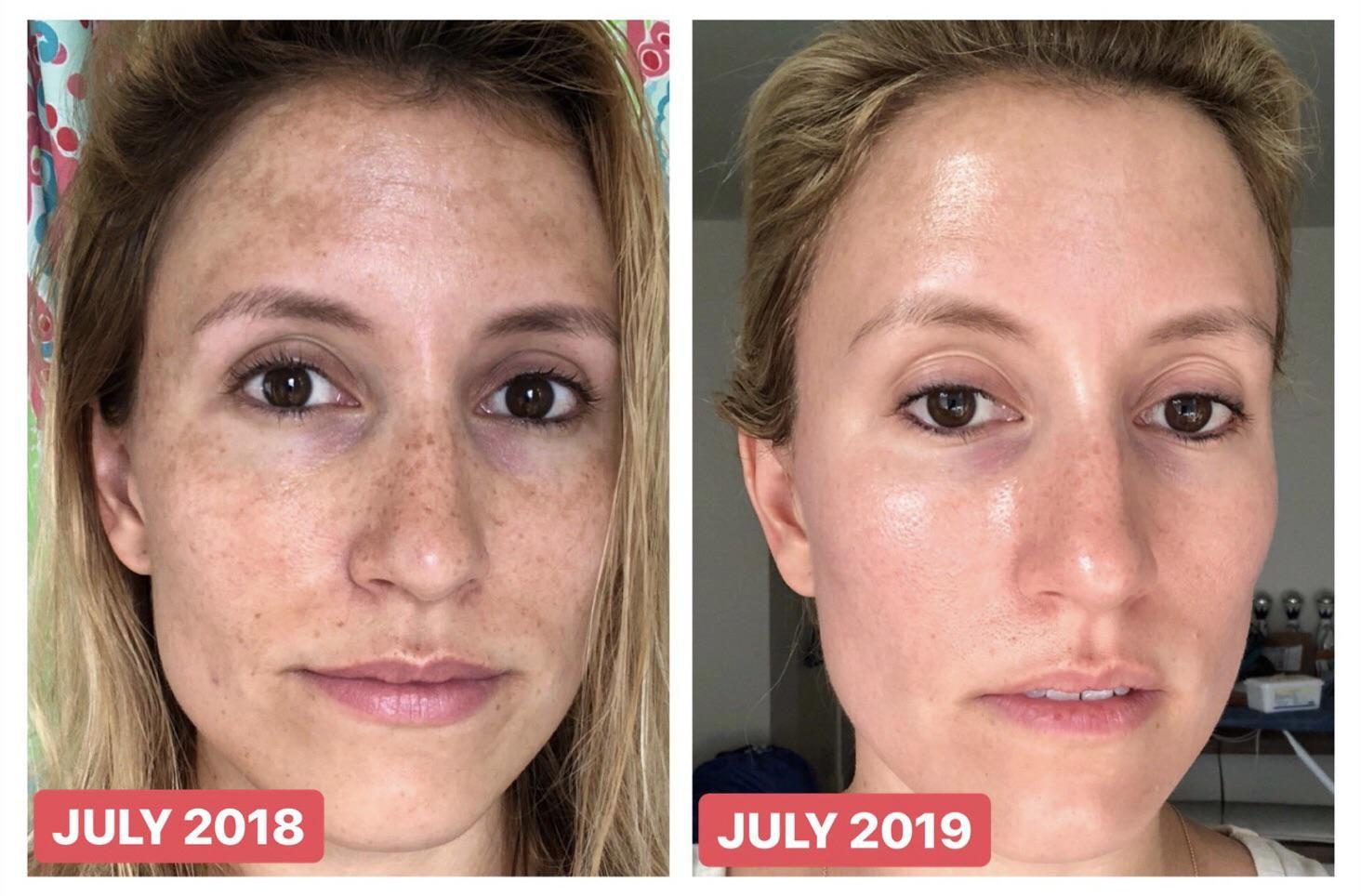 Reddit Skincareaddiction Before After One Year Tretinoin Vitamin C Sunscreen Tretinoin Beauty Skin Care Routine Before And After Acne