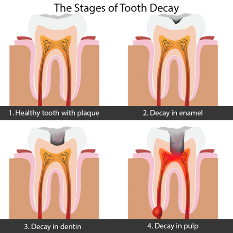 Learn More Http Www Zipheal Com Tooth Decay Five Stages Of Tooth Decay 1714 Dental Decay Oral Care Tooth Decay