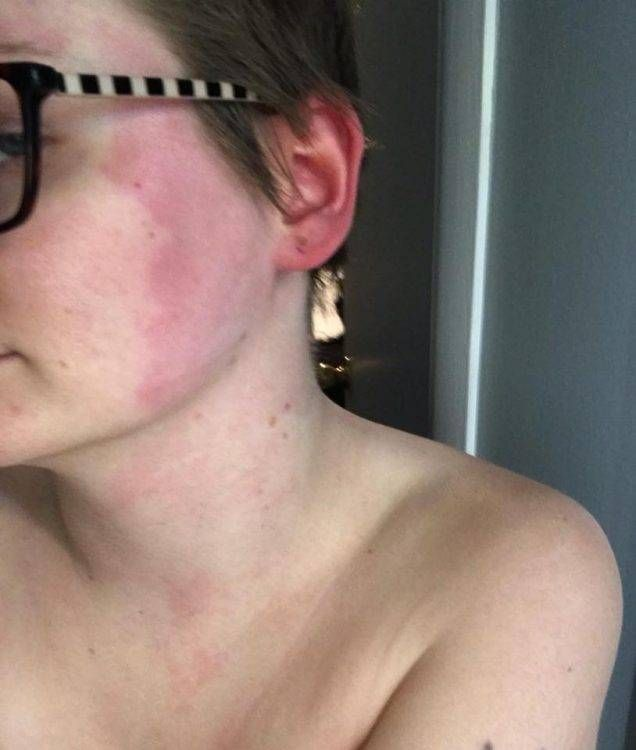 13 Symptoms of Ehlers-Danlos Syndrome —as Shown in Photos ...
