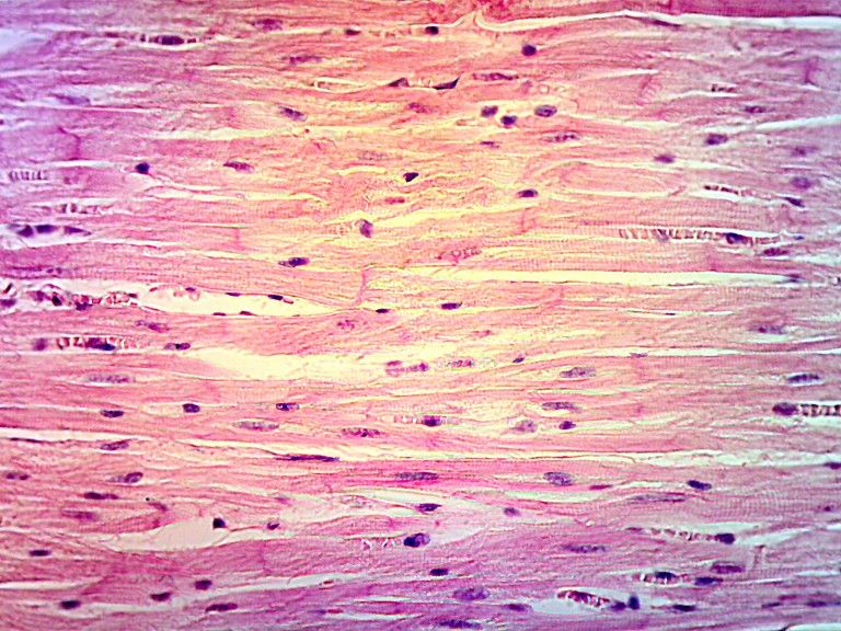 cardiac muscle tissue; uninucleated cells and nuclei are centrally, Muscles
