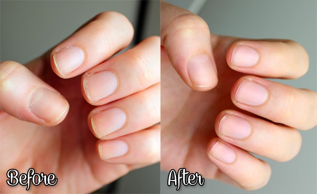 how to make your nails healthy after gel