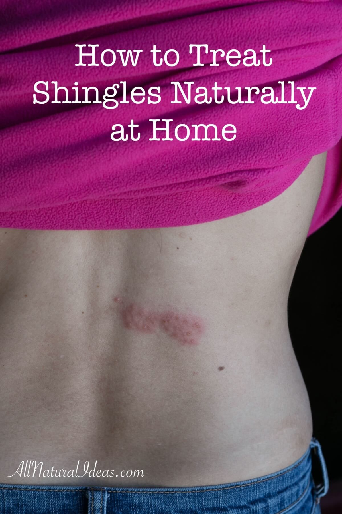 Shingles Is A Painful Skin Rash Caused By The Chickenpox