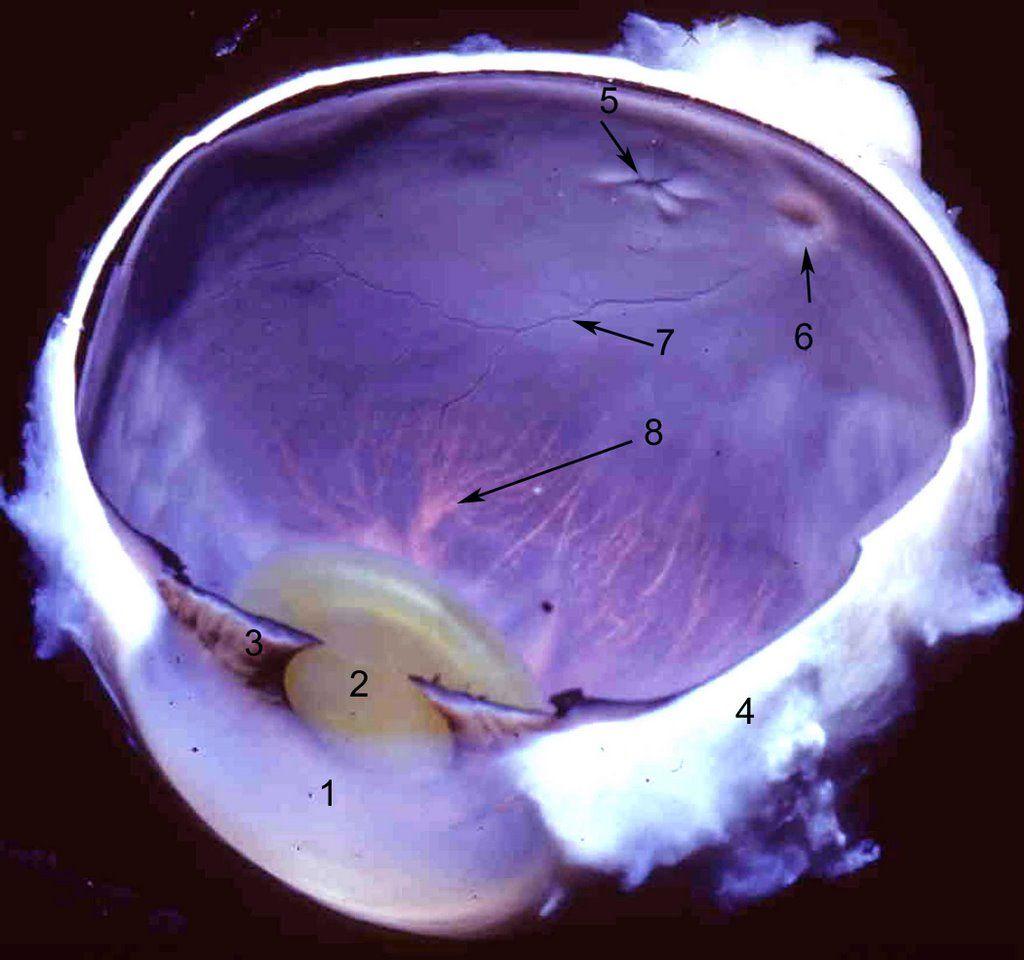 Anatomy Of The Human Eye Eye Anatomy Human Ophthalmology