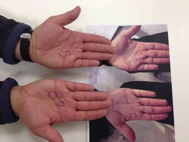 Radiation therapy of Morbus Dupuytren and Ledderhose ...