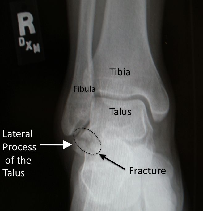 Fracture Of The Lateral Process Of The Talus Snowboarder