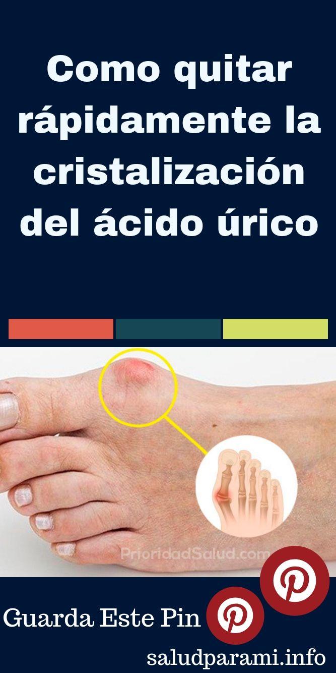 Como quitar acido urico en las manos